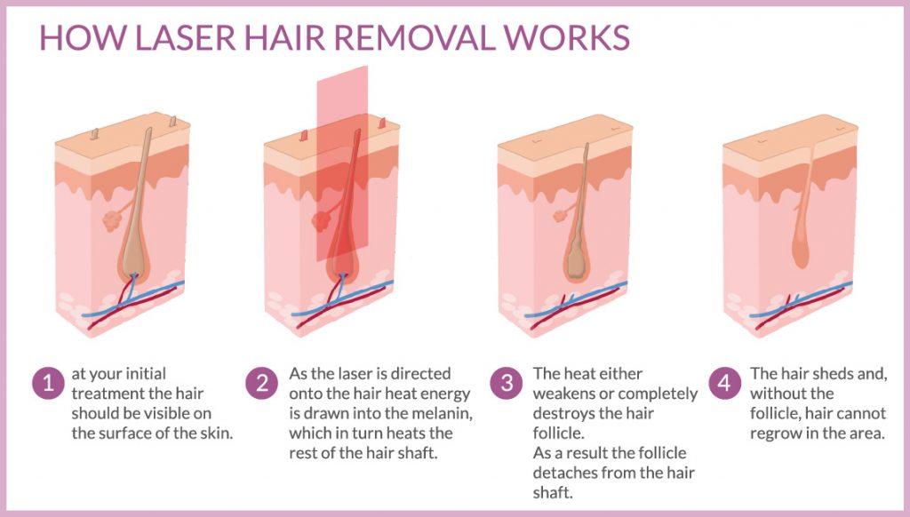 Laser Hair Removal Reading Berkshire Chiltern