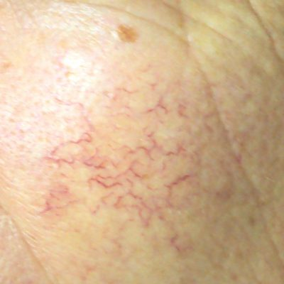 Vascular Lesion Reading Berkshire Chiltern Medical