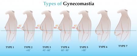 gynecomastia-types