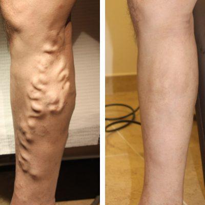Treatment Options For Leg Veins Reading Berkshire